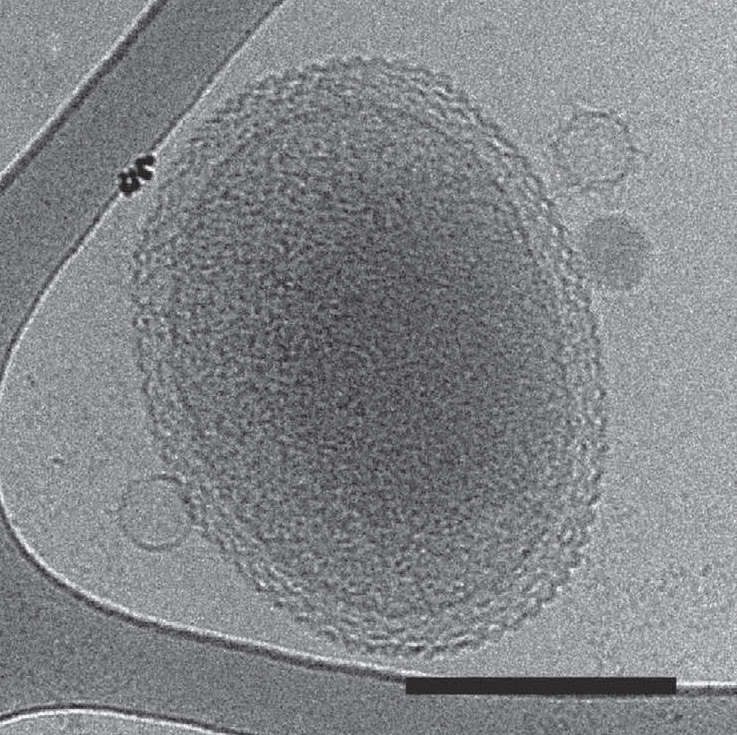 A cryo-electron tomography image of an ultra-small bacteria similar