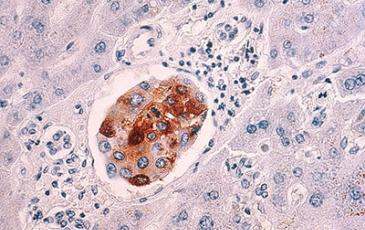 Image of breast cancer cells metastasized to the liver