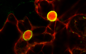 Microscopic photo of red and green fluorescent protein labels on nuclear envelope