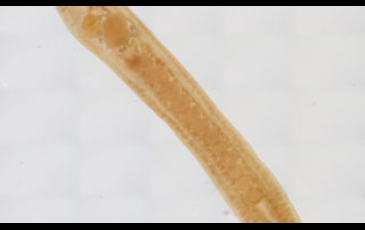 A parasite by the name of Schistorchis stenosoma