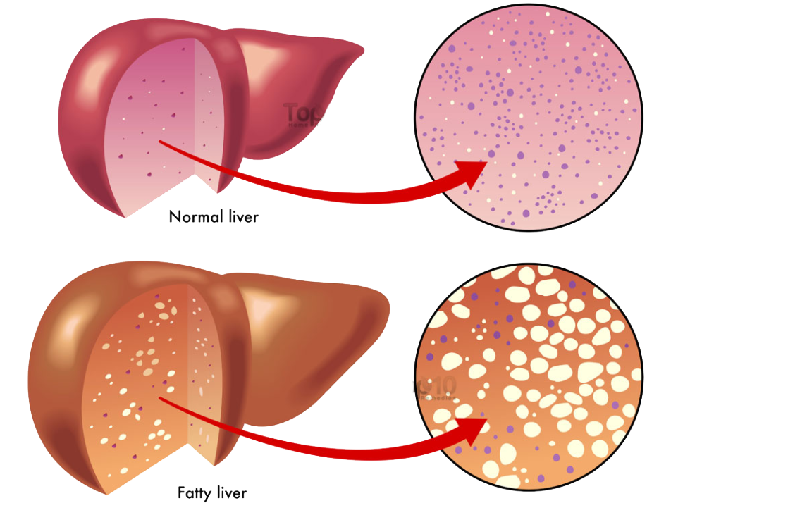 fatty livers are larger and have more fat deposites than normal livers.